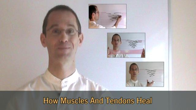 Healing Tennis Elbow (Vid. Prev. Img.)