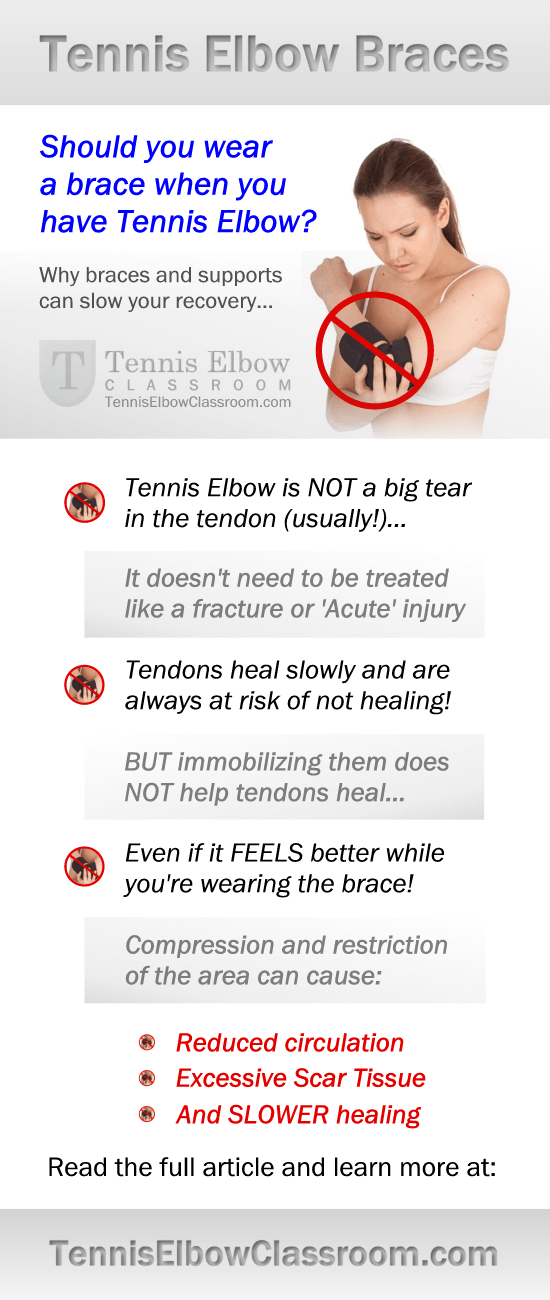 Should you use a brace to treat your Tennis Elbow? (Maybe not!) #TennisElbowTreatment https://tenniselbowclassroom.com