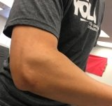 Nick Yee's Tennis Elbow testimonial
