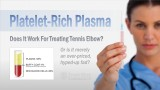 Platelet-Rich Plasma Therapy: Does it work for treating Tennis Elbow?