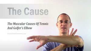 The muscular causes of Tennis Elbow