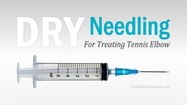 Dry Needling Therapies for Golfer's and Tennis Elbow